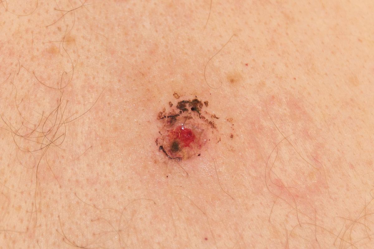 Skin Biospy